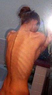 reglas de la anorexia